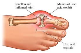 ways to lower uric acid in blood ankle swelling gout treatment allopurinol reduce uric acid